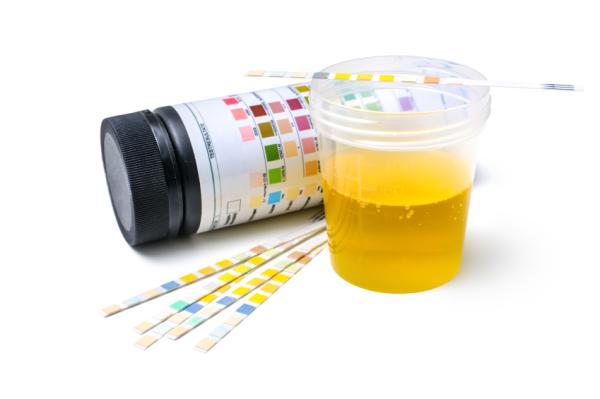 Espuma en la orina: causas y tratamiento - Orina con espuma: causas