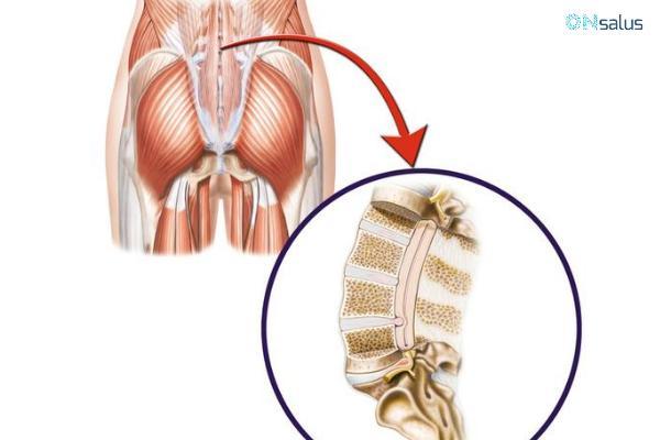 Ciatalgia: causas, síntomas y tratamiento - Causas de ciatalgia