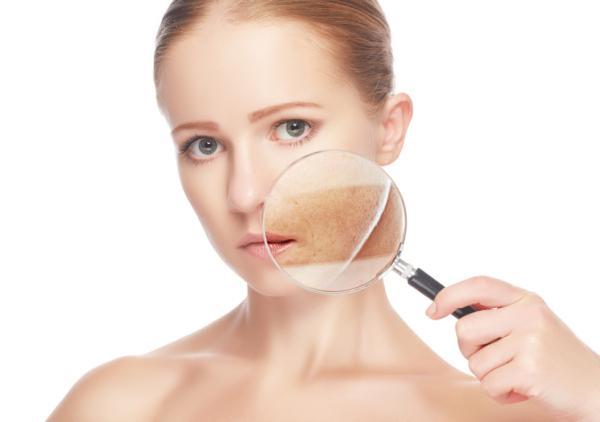 Manchas oscuras en la cara: causas y tratamiento