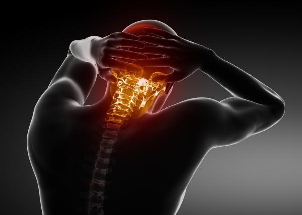 Hormigueo en la cabeza: causas - Hormigueo en la cabeza: cervicales