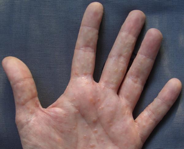 Ampollas en las manos: por qué salen y cómo curarlas - Ampollas en la piel con líquido por dishidrosis