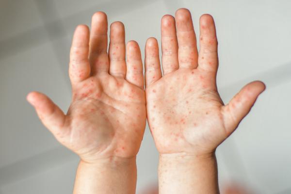 Ampollas en las manos: por qué salen y cómo curarlas - Enfermedad de mano-pie-boca