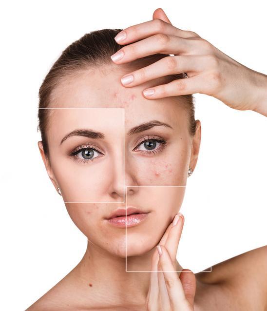 Mascarilla de pepino casera para el acné - Propiedades del pepino para el acné
