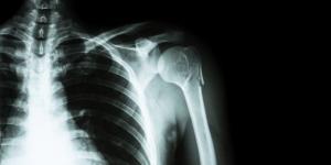 Remedios caseros para huesos fracturados
