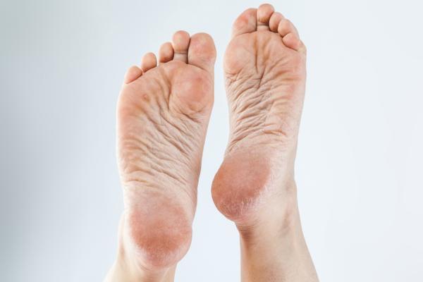Durezas en los pies: por qué salen, cómo quitarlas y remedios caseros