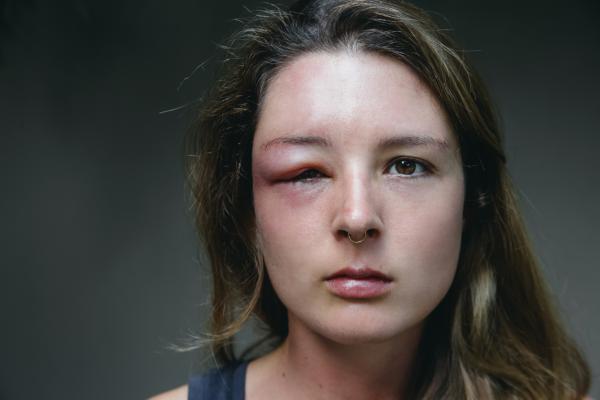 Cómo desinflamar una picadura de avispa en el ojo