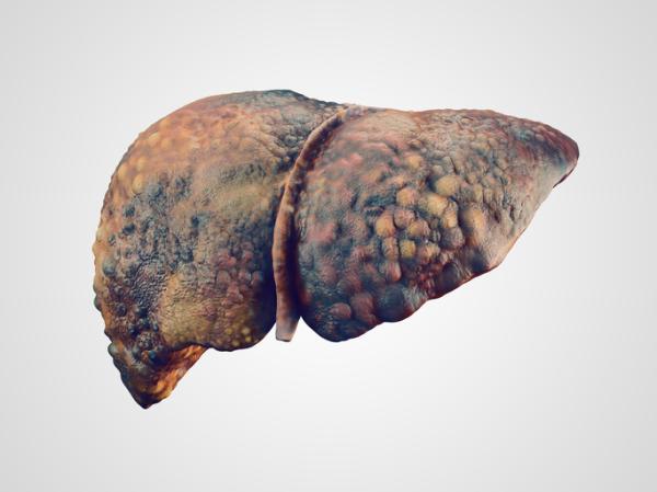 Tipos de cirrosis y sus causas