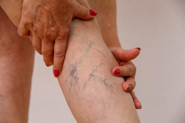 Petequias en las piernas: causas y tratamiento - Mala circulación venosa en las piernas