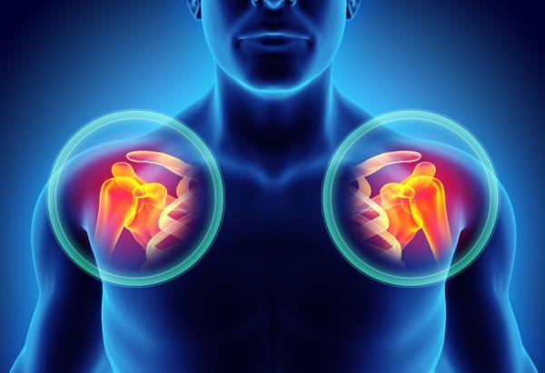 Calcificaciones en el hombro: tratamiento natural - Tratamiento natural para las calcificaciones de hombro