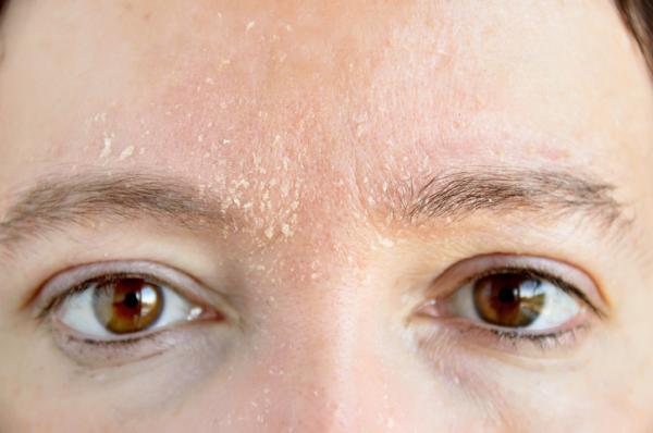 Caspa en las cejas: por qué sale y cómo eliminarla