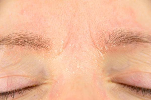 Caspa en las cejas: por qué sale y cómo eliminarla - Dermatitis alérgica