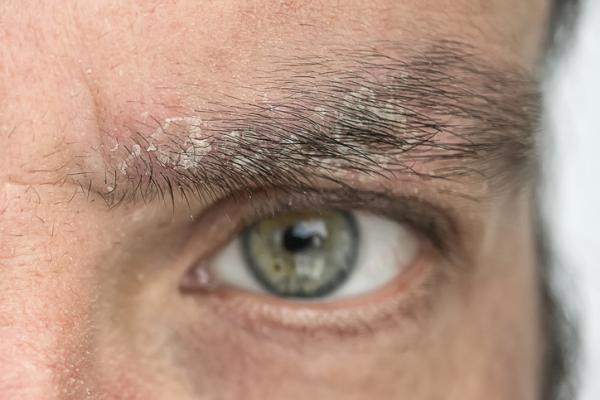 Caspa en las cejas: por qué sale y cómo eliminarla - Psoriasis