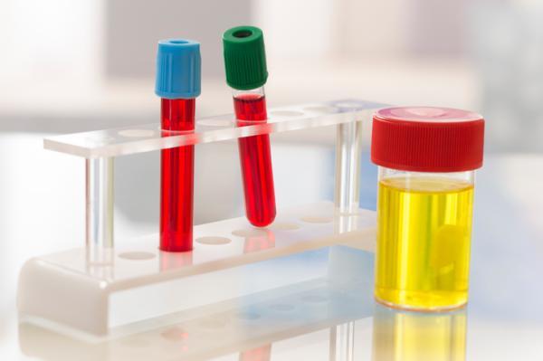 Sedimento urinario: valores normales - Sedimento urinario: un método de diagnóstico