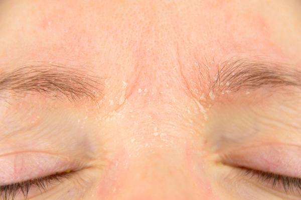 Cómo hidratar la cara - Causas de la piel seca