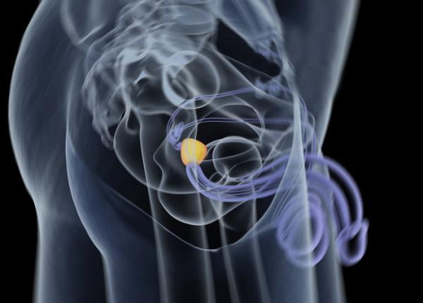Quistes en los testículos: causas, síntomas y tratamiento