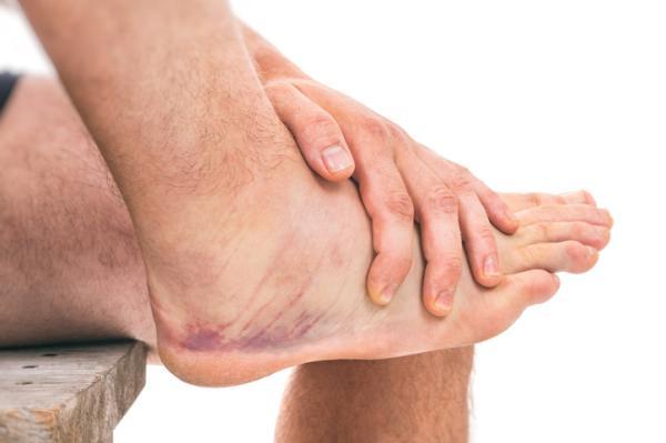 Manchas en los pies: por qué salen y cómo quitarlas