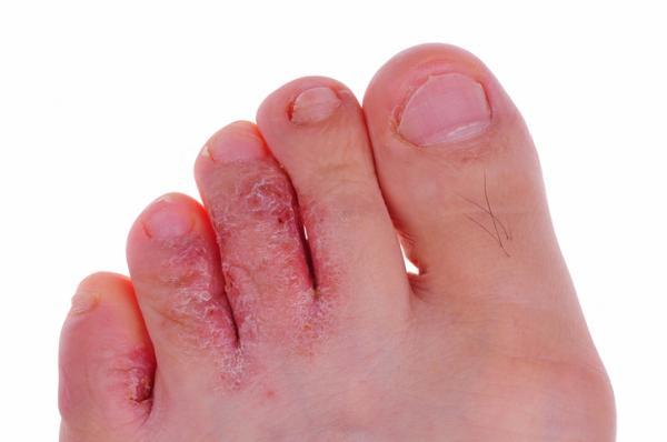 Manchas en los pies: por qué salen y cómo quitarlas - Por qué salen manchas en los pies: causas