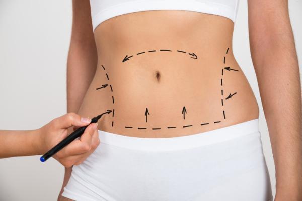Cómo eliminar la grasa del cuerpo rápidamente - Tratamiento para eliminar la grasa del cuerpo
