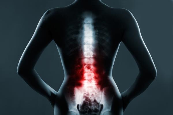 Mielitis transversa: síntomas, tratamiento, secuelas - Tratamiento de la mielitis transversa