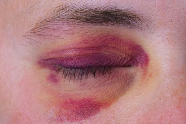 Cómo quitar un moretón en el ojo rápidamente