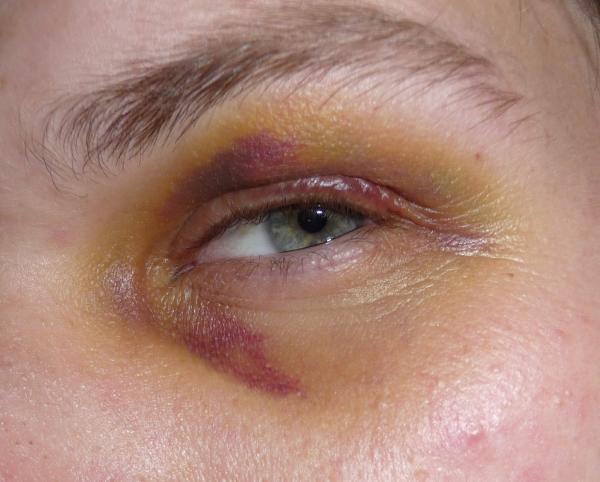 Cómo quitar un moretón en el ojo rápidamente - Cómo quitar un moretón en el ojo rápidamente: tratamiento médico