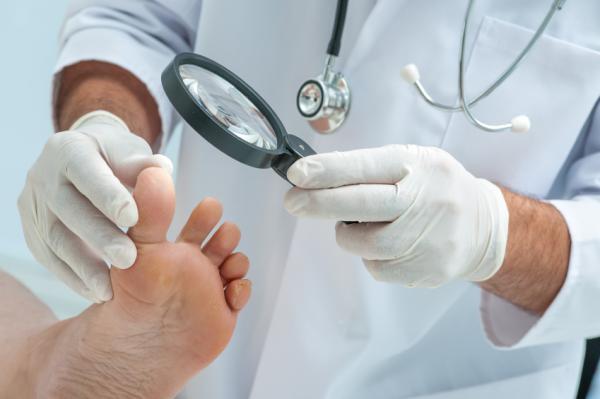 Cómo curar una uña levantada del pie - Cómo curar una uña levantada del pie - tratamiento médico