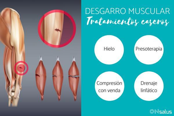 Tratamiento casero para el desgarro muscular