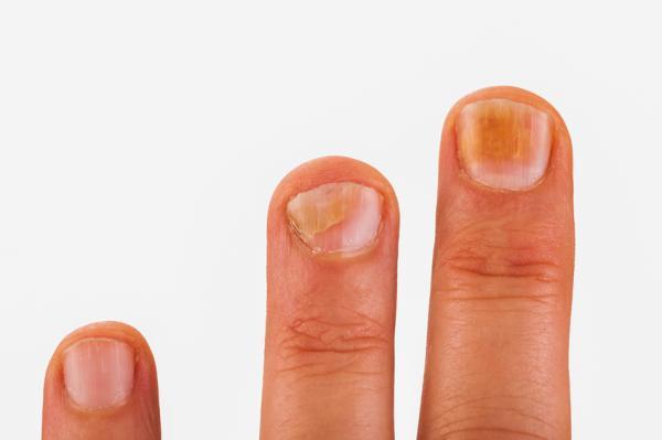 Rayas en las uñas: por qué salen y qué significan - Por qué salen rayas en las uñas