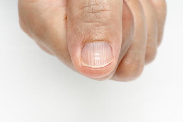 Rayas en las uñas: por qué salen y qué significan