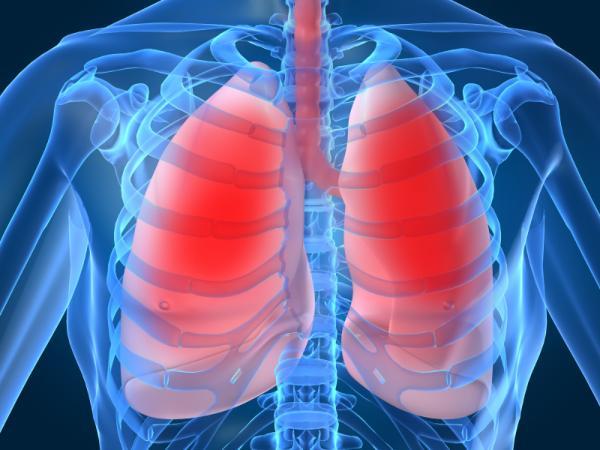¿Puedo fumar si tengo bronquitis? - Causas de la bronquitis