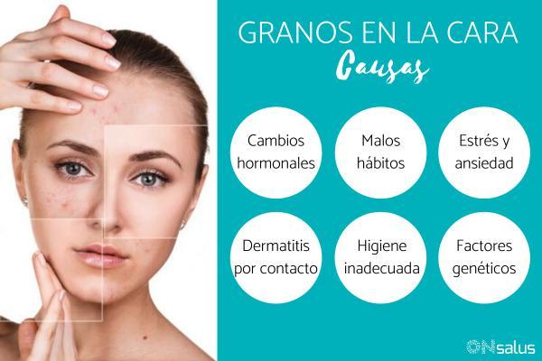 Granos en la cara: causas y remedios caseros
