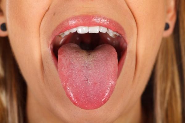 Lengua roja: causas y tratamiento