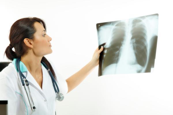 Cómo eliminar líquido de los pulmones de forma natural