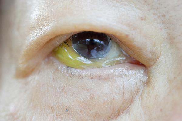 Por qué tengo una mancha amarilla en el ojo