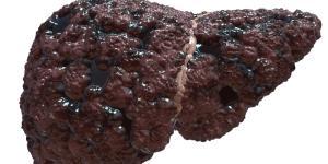 Cirrosis hepática: síntomas y pronóstico