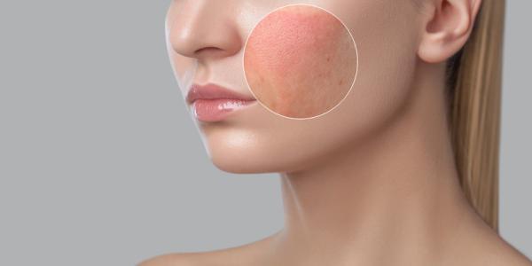 Tengo alergia en la cara: ¿qué puedo hacer? - ¿Por qué tengo alergia en la cara?