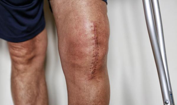 ¿Cuánto tarda en cicatrizar una herida quirúrgica?