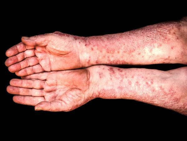 Tratamiento natural de la psoriasis en gota - Síntomas de la psoriasis en gota
