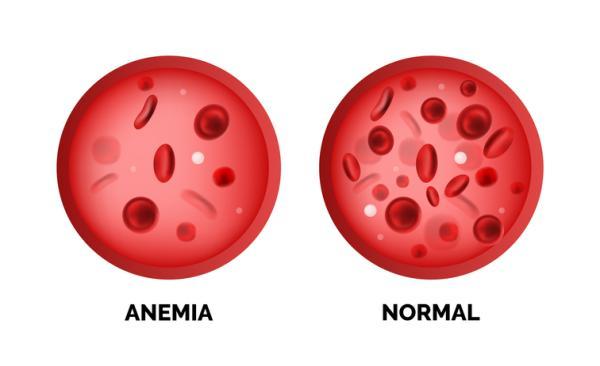Cuándo empieza a hacer efecto el hierro para la anemia - En cuánto tiempo hace efecto el hierro para la anemia