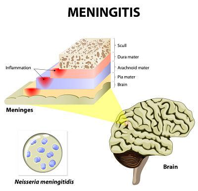 ¿La meningitis es contagiosa? - Qué es la meningitis