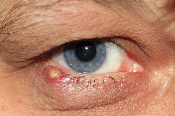 Grano en el ojo: causas y cómo quitarlo