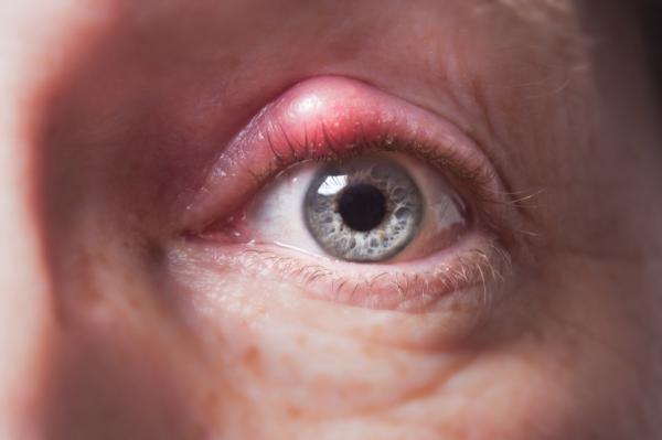 Grano en el ojo: causas y cómo quitarlo - Por qué tengo un grano en el ojo - causas