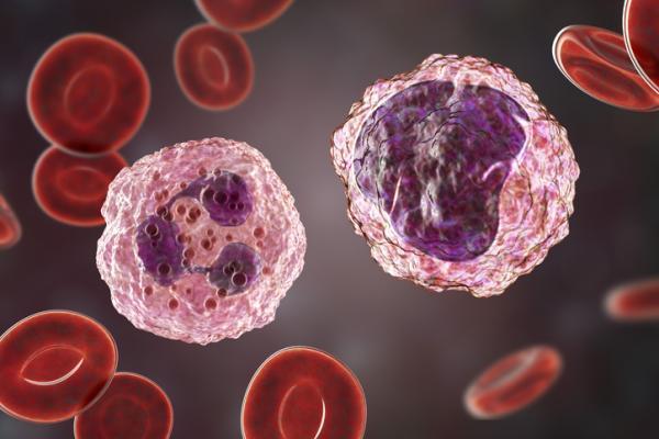 Neutrófilos bajos y linfocitos altos: causas y tratamiento