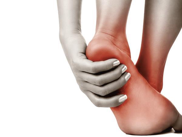 Causas del dolor en la planta del pie - Dolor en la planta del pie al pisar por lesiones por sobrecarga
