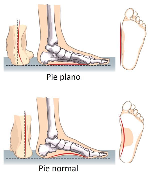 Causas del dolor en la planta del pie - Pie plano causa del dolor en el arco del pie