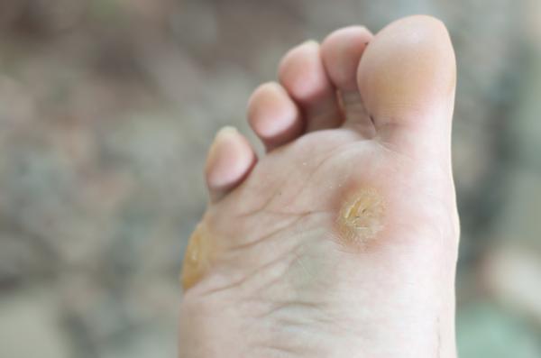 Causas del dolor en la planta del pie - Verrugas plantares