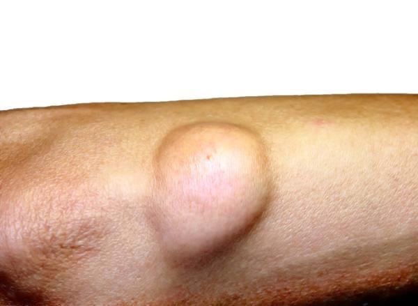 Lipoma maligno: causas, síntomas y tratamiento