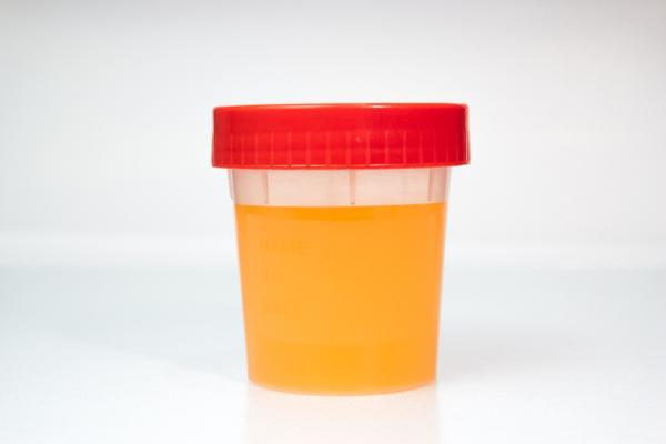 Orina naranja: causas y tratamientos