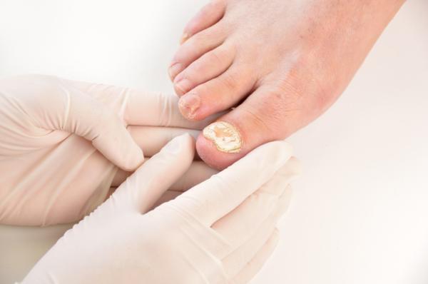 Por qué tengo la uña del dedo gordo del pie amarilla