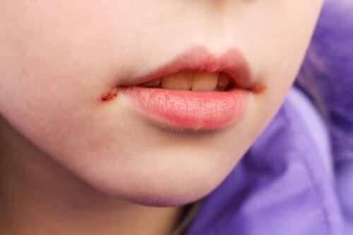 Cómo curar boqueras en niños